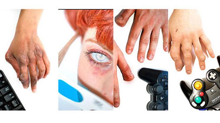 sindromedetecnologia