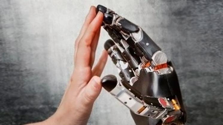protesis-mano