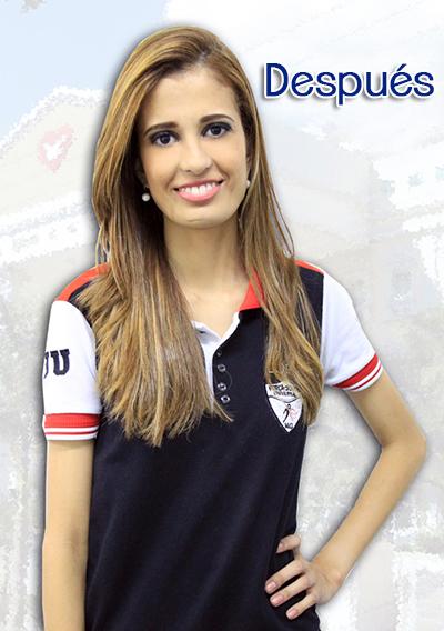 Aline Lima2